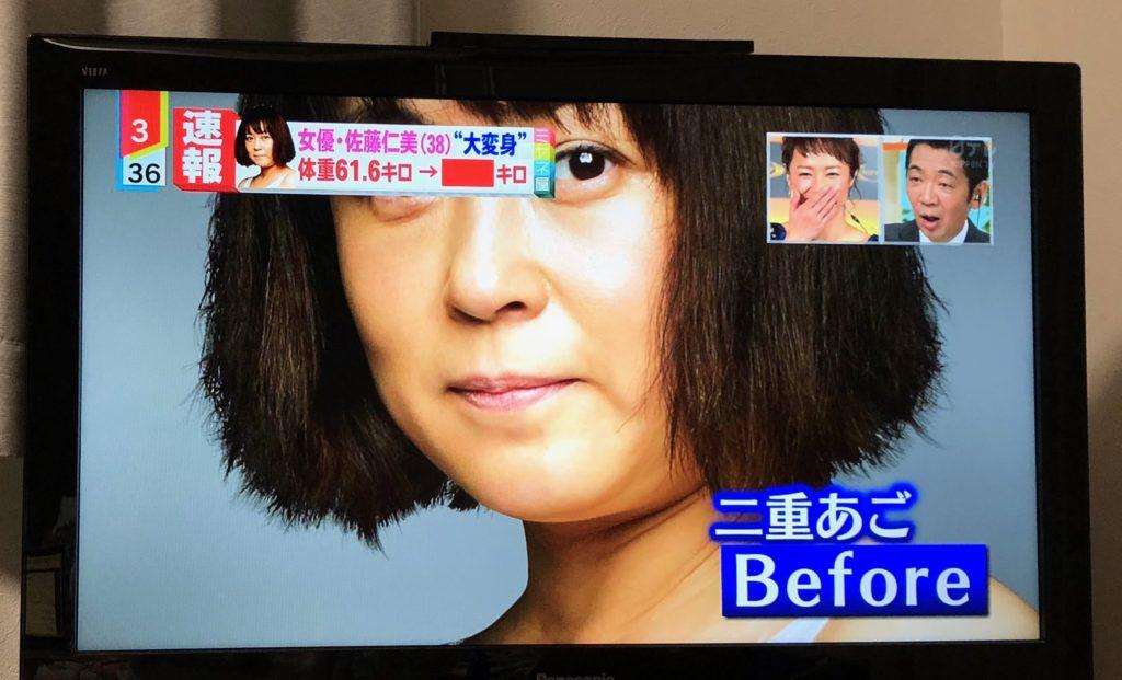 佐藤仁美ライザップCM(画像),12キロのビフォーアフター画像が