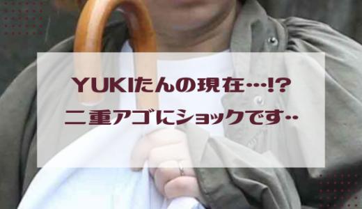 YUKIの現在二重アゴ首のシワ劣化画像!やはり老けたか…昔の若い頃の画像と比較